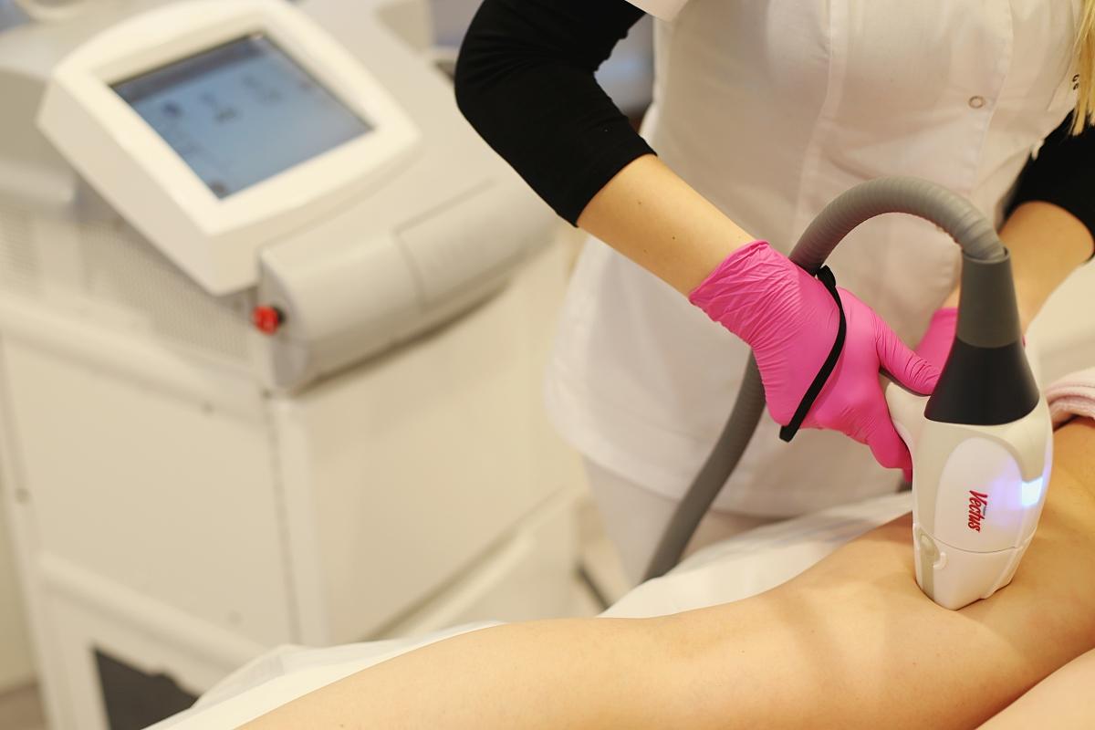 Laser vectus - depilacja laserowa nóg